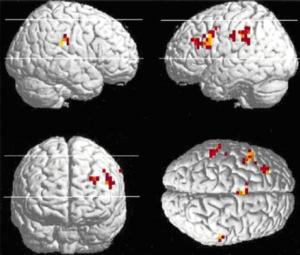 En orange/rouge les zones du cerveau stimulées lors de tâche de langage.
