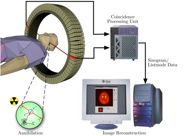 Schéma d'une expérience de TEP-scan. (source : wikipédia)