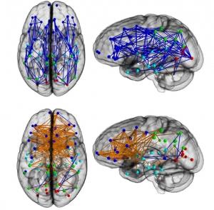 En haut le cerveau des hommes, et en bas celui des femmes, d'après les auteurs de cette publication