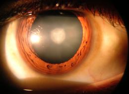 Oeil humain touché par la cataracte. Le cristallin devient progressivement opaque, par agrégation des protéines -α-crystalline.